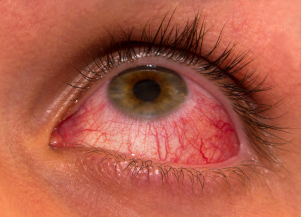 Help with Allergic Conjunctivitis